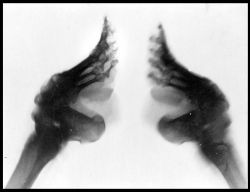 Fashion Smashin: An xray of bound feet.